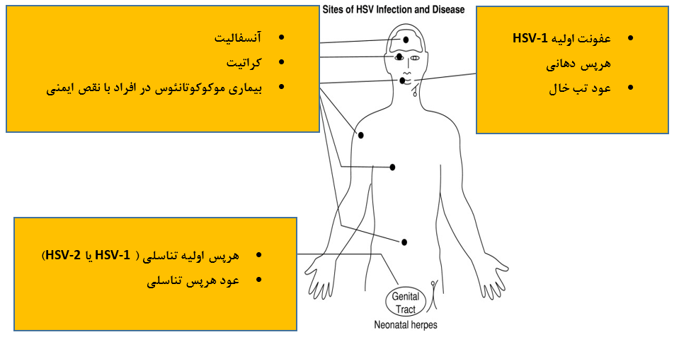 HSV-Disease2