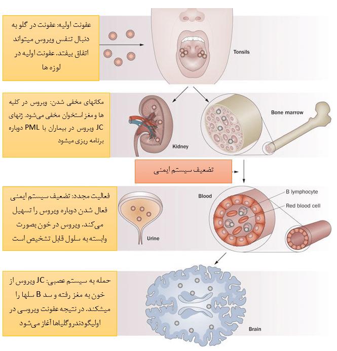 JC-Disease