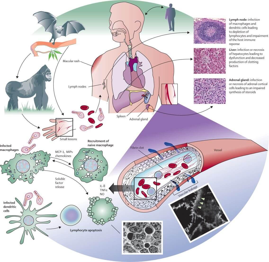 ebola pathogenesis