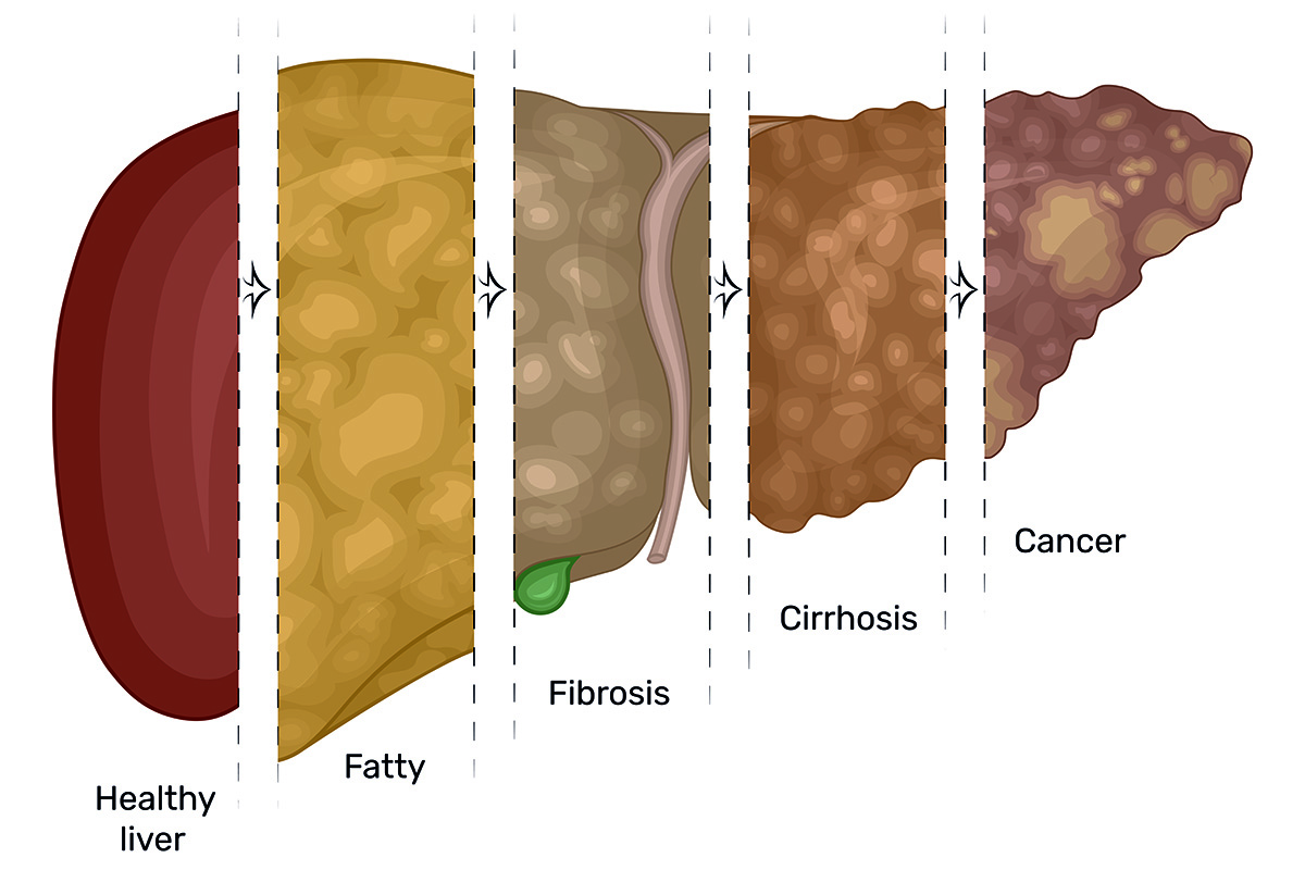 Illustration of the gradual damage of the liver